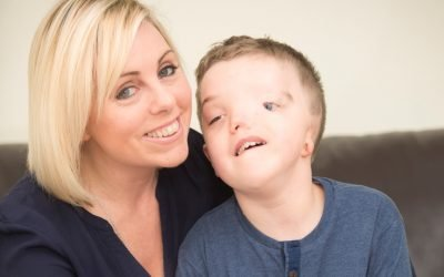 Helping children to understand facial disfigurement – 7 tips.