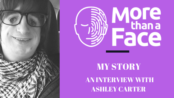 More Than a Face. My Story ~ An interview with Ashley Carter