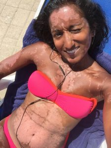 Psoriasis story ~ Lying by the pool in Malta