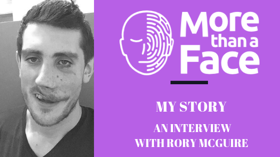My Story ~ An interview with Rory McGuire