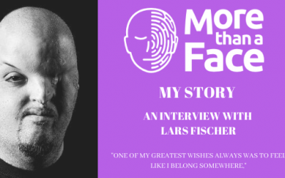 My Story ~ An interview with Lars Fischer