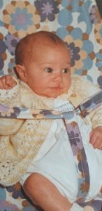 David as a baby in his bouncer. His hair lip is clear