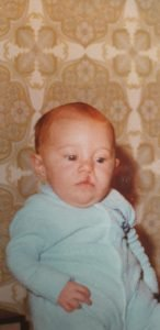 David as a baby faces the camera. His hair lip is very clear